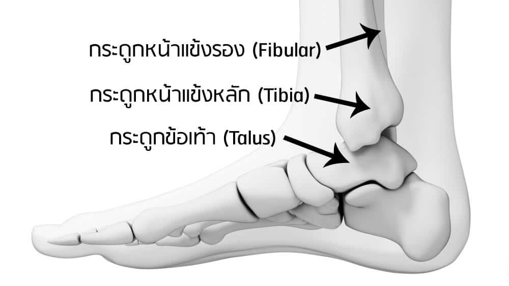 กระดูกข้อเท้าหัก