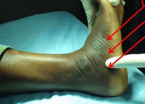 ข้อเท้าบวมหัก
