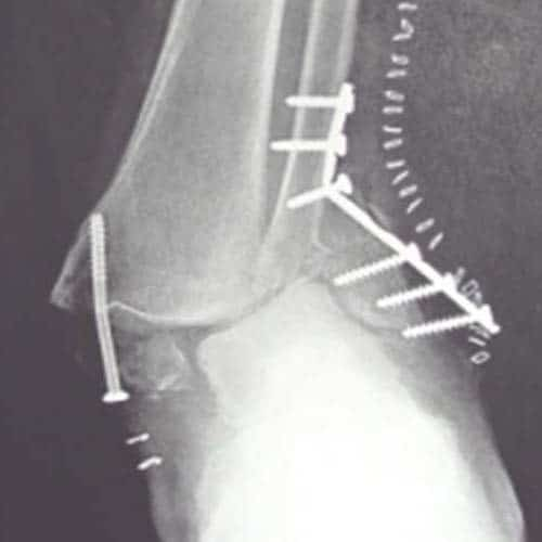 ข้อเท้าหักเมื่อไหร่เดินได้