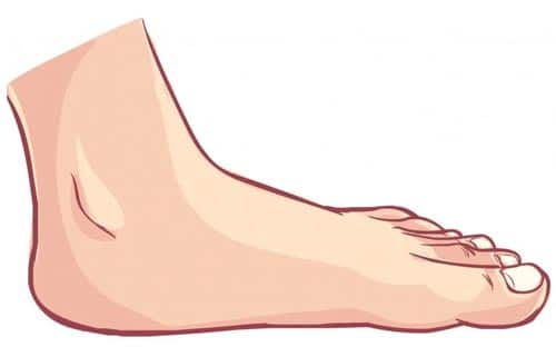 เท้าแบน ดูยังไง