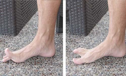 กายภาพเท้าแบนนิ้วเท้า
