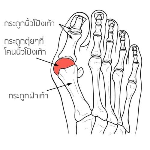 นิ้วโป้งเท้าเอียงสาเหตุ