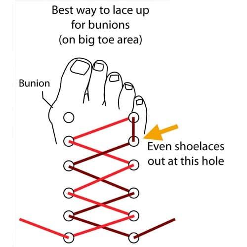 นิ้วหัวแม่เท้าเอียงร้อยเชือกรองเท้า