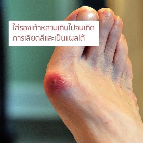 นิ้วหัวแม่เท้าเกเป็นแผล