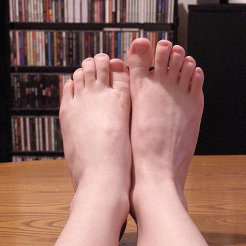 นิ้วหัวแม่เท้าอักเสบ