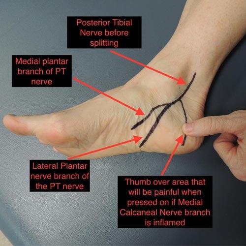 เจ็บส้นเท้าชาเท้า
