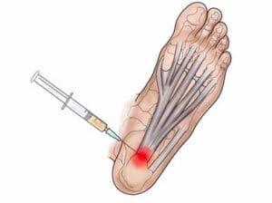เจ็บส้นเท้าเวลาเดิน
