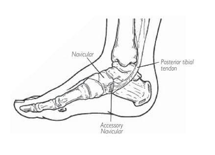 กระดูกงอกที่เท้าเกิดจากอะไร