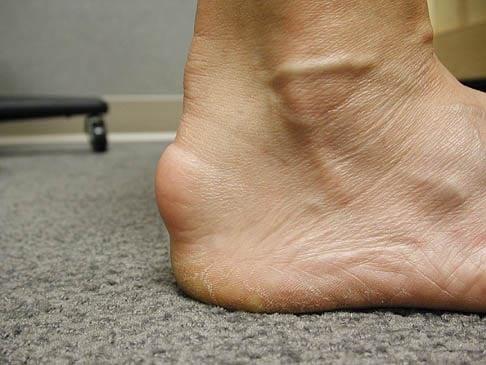 กระดูกงอกที่ส้นเท้า