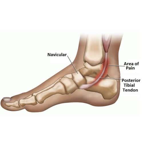 เอ็นข้อเท้าอักเสบกระดูกงอก