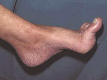 เบาหวานเท้าผิดรูป