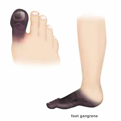 เบาหวานเท้าดำ