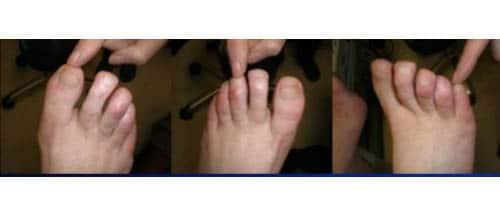 วิธีตรวจเท้าเบาหวาน