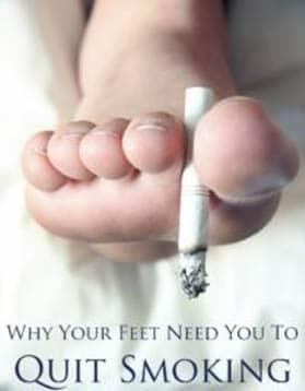 เท้าเบาหวานเลิกบุหรี่