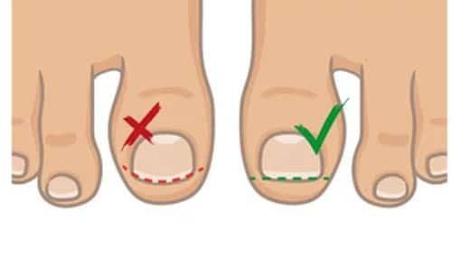 ตัดเล็บเท้าเบาหวาน