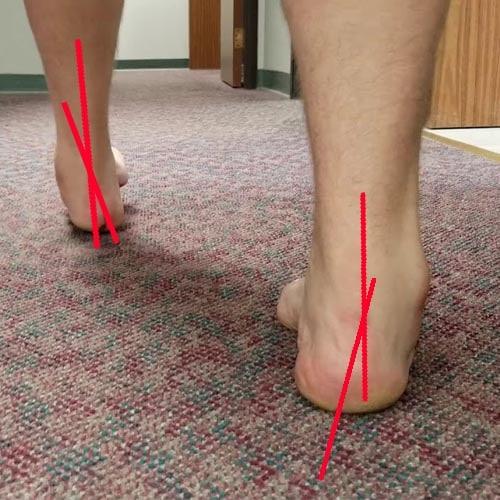 เท้าผิดรูปข้อเท้าพลิก