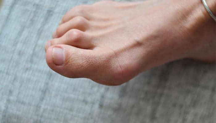 นิ้วเท้าผิดรูป