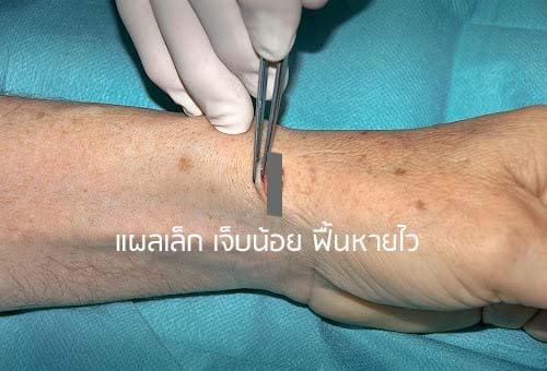 ผ่าตัดรักษาเอ็นข้อมืออักเสบ