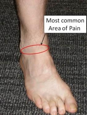 กระดูกงอกร่วมกับมีข้อเท้าขบด้านหน้า
