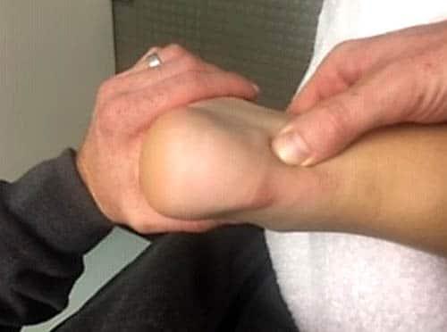 กระดูกงอกข้อเท้าด้านหลัง